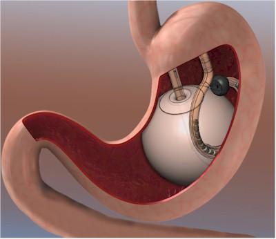 Balón intragástico y dieta, efectividad comprobada