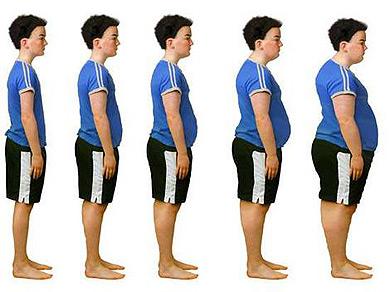 Problemas de salud por causa de la obesidad
