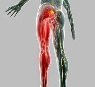 Consejos saludables para tratar el dolor de ciática