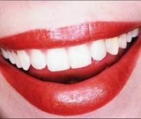 Cómo lucir una dentadura blanca durante todo el año