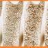 Osteoporosis en la celiaquía | CeliCity